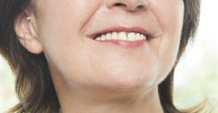 Seis tratamientos para eliminar las manchas en la piel