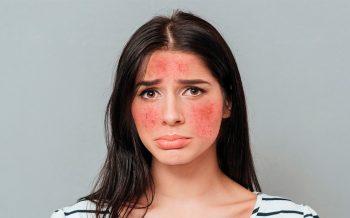 Como combatir la rosácea en la piel