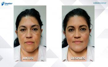Maquillaje para camuflajear la hiperpigmentación