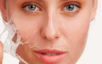 Cuidados de la piel después de un peeling químico