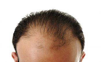 La tecnica revolucionaria de trasplante de cabello